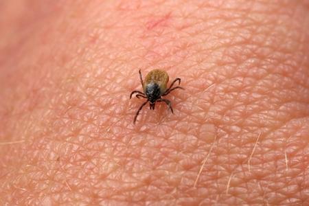 Une étude participative sur la maladie de Lyme