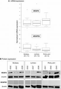 Blocked expression of key genes of the angiogenic pathway in JSRV-induced pulmonary adenocarcinomas