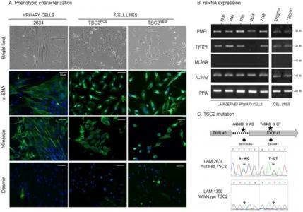 Dysregulation of the endothelin pathway in lymphangioleiomyomatosis
